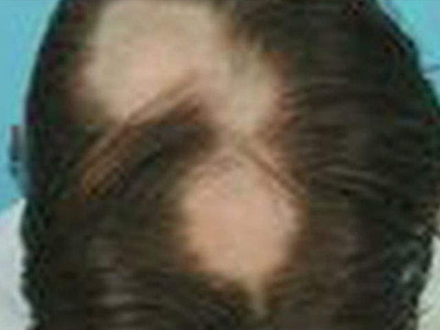 how to cut our own hair with thinning