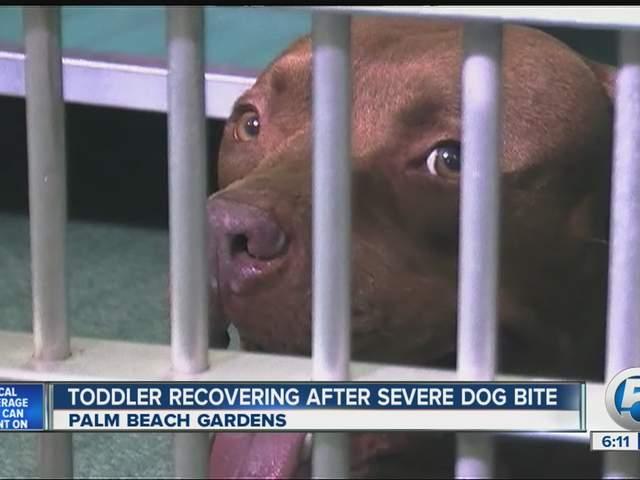 Boy Bitten In Face By Neighbor S Dog In Palm Beach Gardens