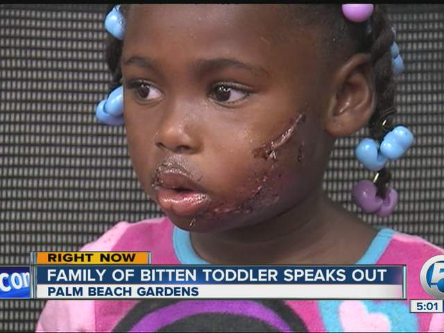 Ja 39 Riyah Jones Three Year Old Bitten By Pit Bull To Be