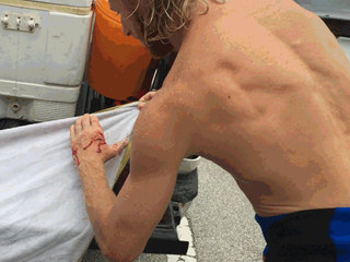 Surfer, swimmer bitten by sharks in PB County