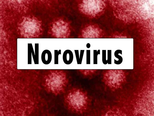 Possible norovirus at Palm Beach Gardens Elem.