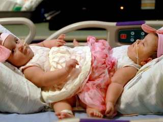Surgery separates infant conjoined twins
