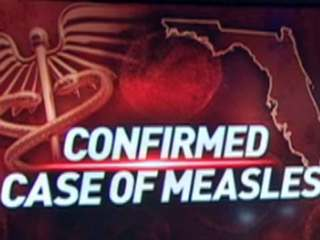 100 may have been exposed to child with measles
