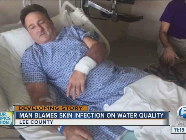 Man recovering from gruesome infection after trip to the beach