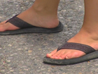 Doctors warn about the dangers of flip-flops
