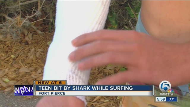 Bloody shark attack doesn't scare teen surfer from water