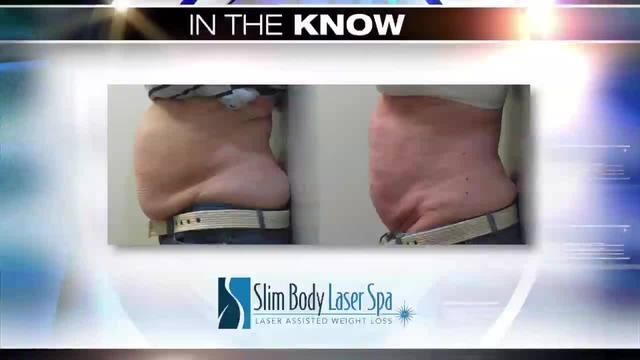 In the Know- Slim Body Laser Spa