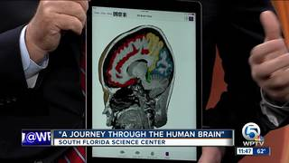 'A Journey Through The Human Brain' exhibit