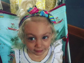 Toddler diagnosed with Childhood Alzheimer's