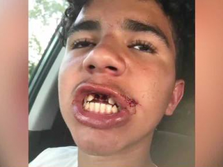 Florida child punched, no charges filed