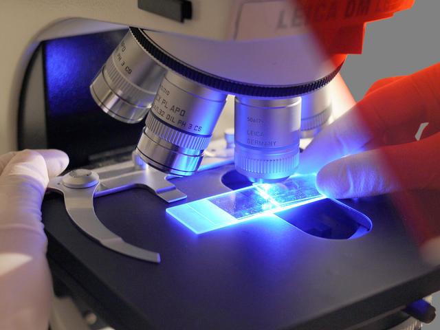 Clinical trial uses polio virus on brain tumors