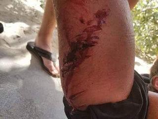 Shark bites surfer at Lake Worth beach