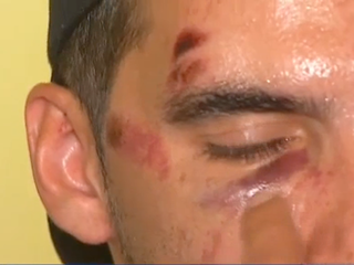 Suspects turn self in after gay men attacked
