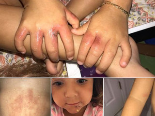 Girl contracts bacterial infection at Fla. beach