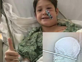 Boy survives after meat skewer pierces skull
