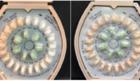3 lots of Ortho-Novum birth control recalled