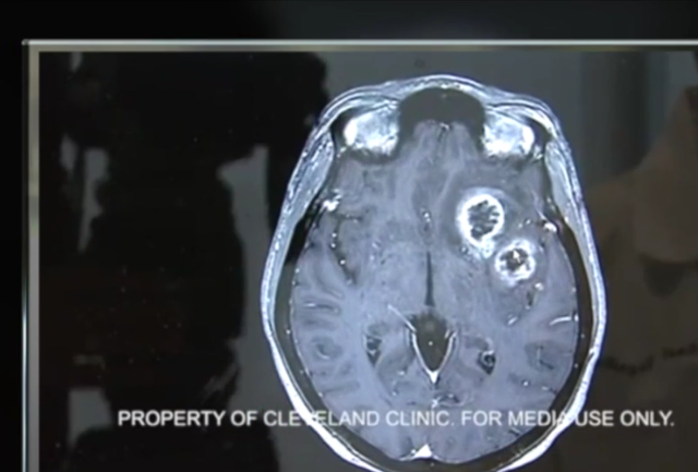 Pushing for more information on glioblastoma